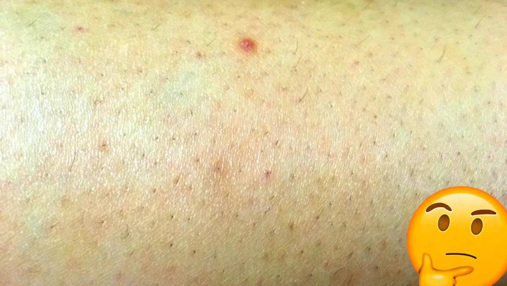 Complete Guide To Dealing With Ingrown Hair | The Practical Beauty