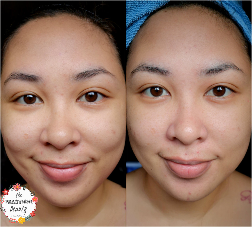 Neobeau Home Clinic Diamond 3-Step Peeling Program - NewLife PH - RESULTS | The Practical Beauty